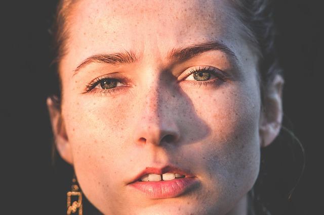 žena s pihami v obličeji